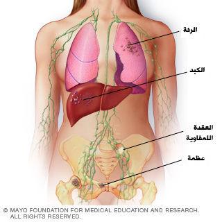 المرحلة الرابعة من سرطان الثدي