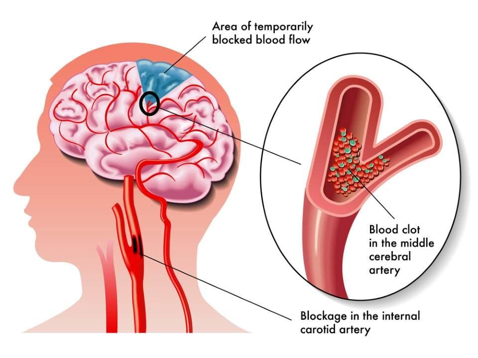 خمسة مؤشرات للسكتة الدماغية قد يتجاهلها الكثيرون