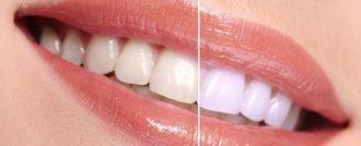 قبل وبعد تبييض الاسنان