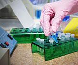 فحص الهرمون المنبه للغدة الدرقية (TSH)